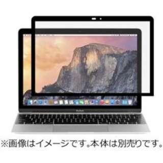moshi iVisor 12 for MacBook 12 MOIVR12