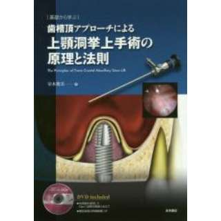 歯槽頂アプローチによる上顎洞挙上手術の原理と法則 基礎から学ぶ